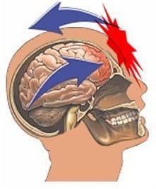 concussion graphic 3